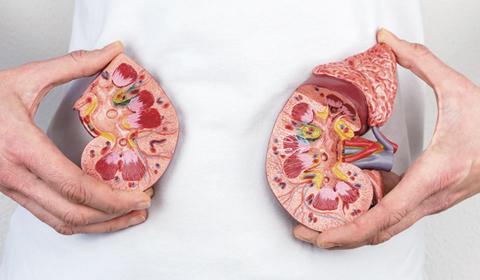 Prevenção e tratamento das «pedras nos rins»
