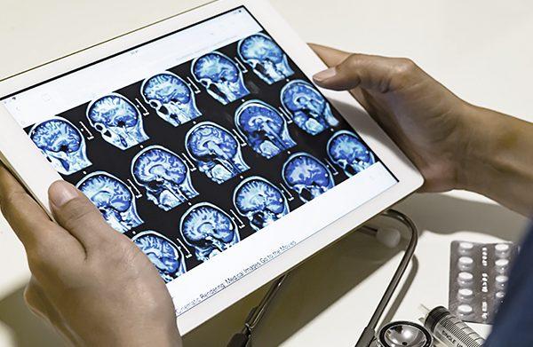 Investigação ibérica vai criar ferramenta que contribui no diagnóstico do Alzheimer