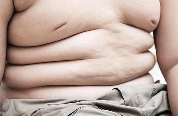 Tendência de diminuição do excesso de peso e obesidade nas crianças.